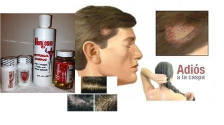 Amazon.com: Hongosan Hongos En Uñas , Hongos En Pies Y Hongo En Cabeza Hongosan Kit Completo Hongosan El Original: Health & Personal Care