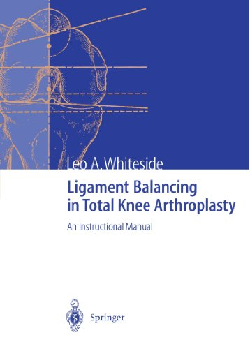 (Ligament Balancing in Total Knee Arthroplasty: An Instructional Manual)