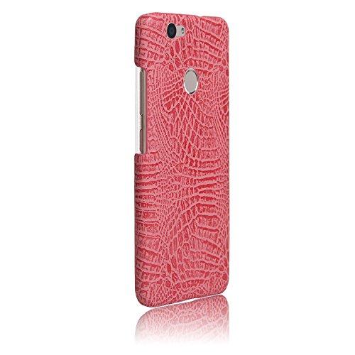YHUISEN Huawei Nova Caso, patrón de piel de cocodrilo clásico de lujo [ultra delgado] cuero de la PU antirayado PC cubierta protectora de la caja dura para Huawei Nova ( Color : White ) Pink