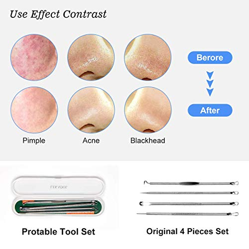 2021Newest Blackhead removal tool kit. Four-piece with storage box for facial care silver