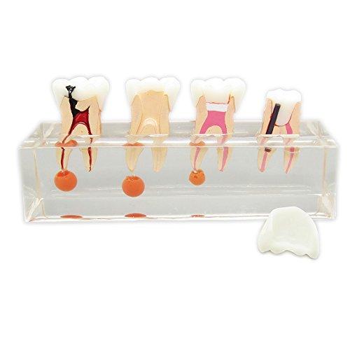 Dentalmall Dental 4-stage Endodontic Treatment Model for Study Teach Teeth Model 4018