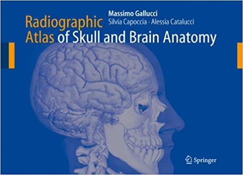 Radiographic Atlas Of Skull And Brain Anatomy 9783642070594