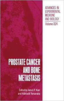 \\WORK\\ Prostate Cancer And Bone Metastasis (Environmental Science Research). Index research would Defensa leading access trips
