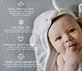 BELLA B Bee Gone Cradle Cap Baby Shampoo 8 oz
