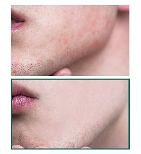 Somebymi AHA BHA PHA MIRACLE SERUM 50ml / After using Miracle Toner by Somebymi (Image #5)
