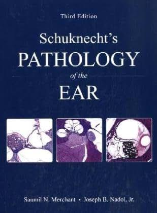 Schuknecht's Pathology of the Ear, 3e