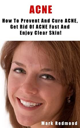 how to clear acne fast for wedding