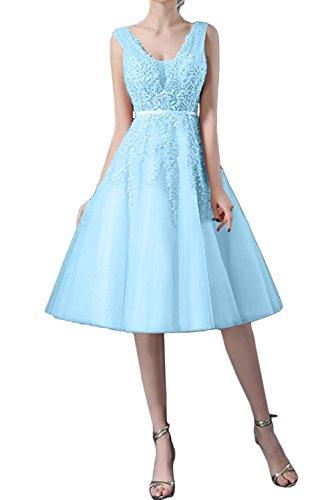 Traumhaft Damen Kurz Spitze Ballkleider Himmelblau Brautjungfernkleid Tuell Abendkleider Ivydressing qz5fxwvf
