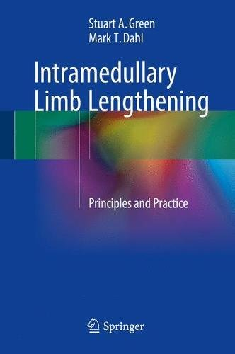 Intramedullary Limb Lengthening: Principles and Practice