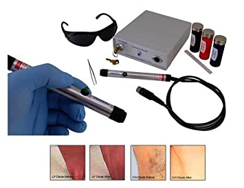 DM6050 Salon Quality Permanent Laser Hair Removal Machine with Kit