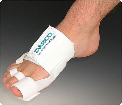 Darco Toe Alignment Splint (Best Shoes For Capsulitis Of The Second Toe)