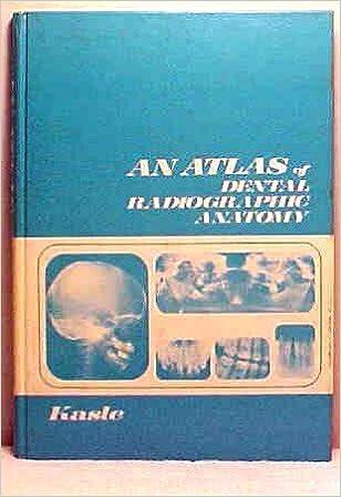 Atlas Of Dental Radiographic Anatomy Myron J Kasle 9780721652948