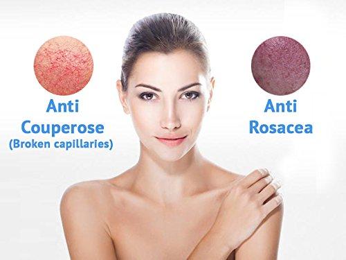 Royal Dead Sea Broken Capillaries, Rosacea Face Cream ...