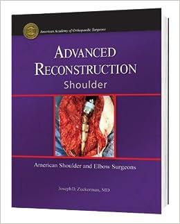 Advanced Reconstruction: Shoulder