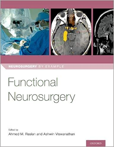 Functional Neurosurgery (Neurosurgery by Example) - Original PDF
