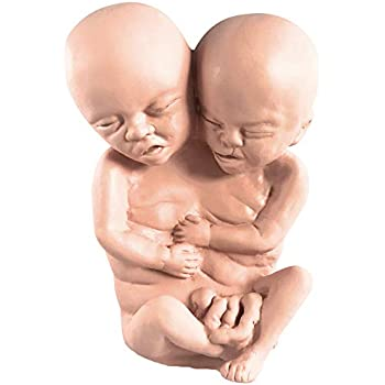 Asylum Zone Siamese Twin Conjoined Fetus Latex Baby Fetal Pickled Punk Prop