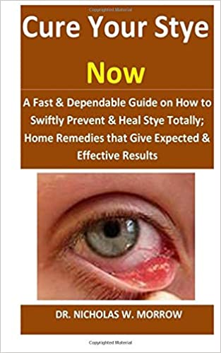 Buy Cure Your Stye Now A Fast Dependable Guide On How To Swiftly