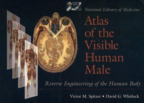 National Library of Medicine Atlas of the Visible Human Male: Reverse Engineering of the Human Body