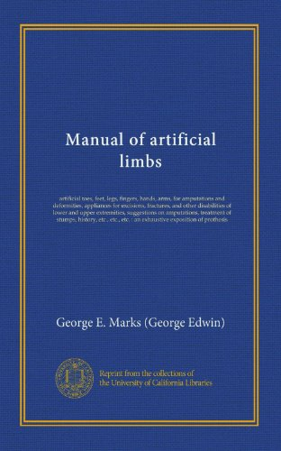 Manual of artificial limbs: artificial toes, feet, legs, fingers, hands, arms, for amputations and deformities, appliances for excisions, fractures, ... treatment of stumps, history, etc., (Arm Stump)