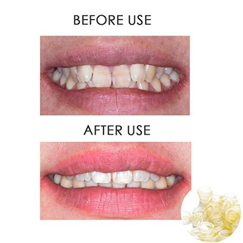Wondere 100 Pcs Dental Rubber Bands Orthodontic Elastics Braces