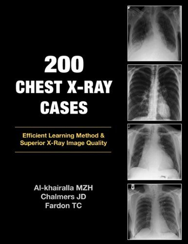 200 Chest X-Ray Cases by Al-Khairalla Mudher Chalmers James Fardon Tom (2009-10-21) Paperback