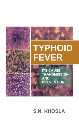 Typhoid Fever: Its Cause, Transmission  and Prevention