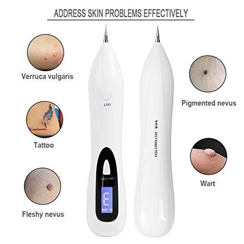 5fe6a918bb68 ZQG BEAUTY Nevus Removal Pen Skin Label Removal with 9 Adjustable Modes  Nevus Freckle Birthmark with