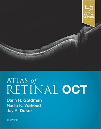 Atlas of Retinal OCT: Optical Coherence Tomography, 1e