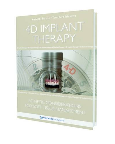 4D Implant Therapy: Esthetic Considerations for Soft-Tissue Management