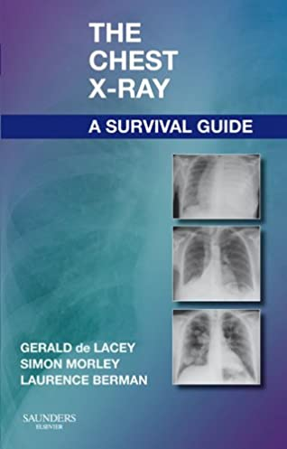 amazon com the chest x ray a survival guide ebook gerald de lacey rh amazon com chest x ray survival guide free download chest x ray survival guide