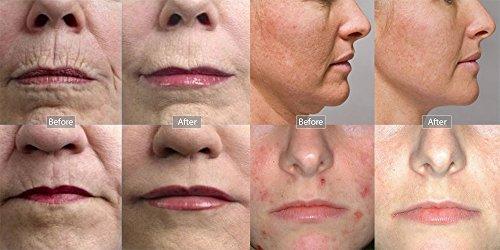Traitement anti cicatrice acn rouge 70 - Traitement anti araignee rouge ...