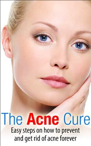 The Acne Cure: Easy Steps on How to Prevent and Get Rid of Acne Forever (The Acne Cure, Acne Scars, Acne treatment Book 1)