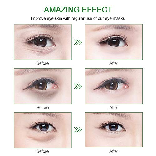 Under Eye Patches Teamyo Collagen Eye Masks,Reduce Dark Circles & Puffiness Eliminate Eye Bags, Natural Eye Treatment Masks with Anti Wrinkles & Anti Aging, Moisturizer Deeply,30 Pairs-Pink Cyan