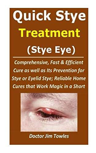 Quick Stye Treatment  (Stye Eye): Comprehensive, Fast & Efficient Cure as well as Its Prevention for Stye or Eyelid Stye; Reliable Home Cures that Work Magic in a Short While