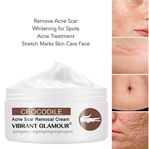 Scar Removal Cream For Old Scars -Stretch Mark Removal Cream for Men and Women Stretch Marks Relief and Burns Repair,Face Skin Repair Cream