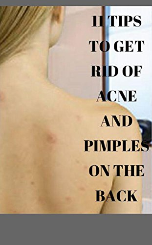 11 Tips To Get Rid Of Acne And Pimples On The Back