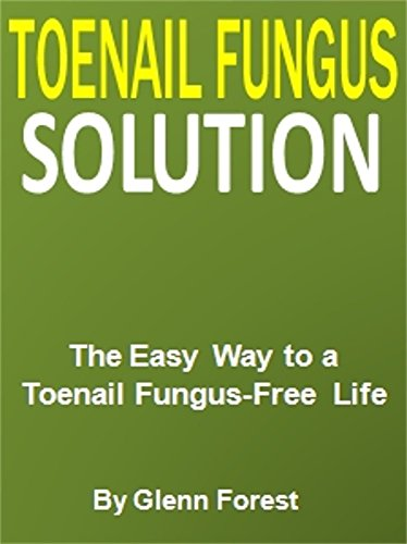 Toenail Fungus Solution: The Easy Way to a Toenail Fungus-Free Life (Easy Way To Get Rid Of Toenail Fungus)