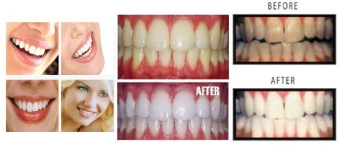 Buy diy teeth whitening kits