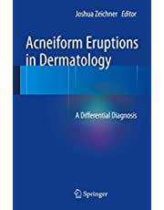 Acneiform Eruptions in Dermatology: A Differential Diagnosis