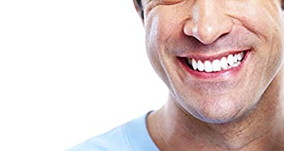 At Home Professional Teeth Whitening Kit 35% Carbamide Peroxide