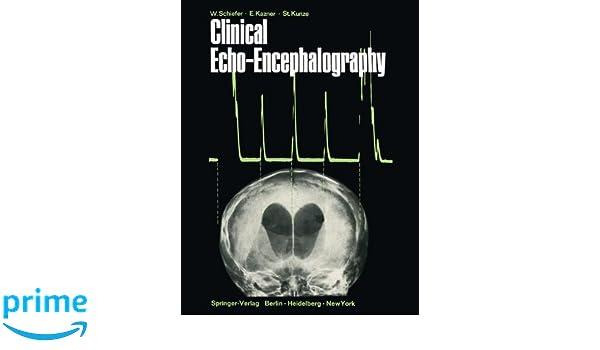 Clinical Echo-Encephalography: 9783642487231: Medicine