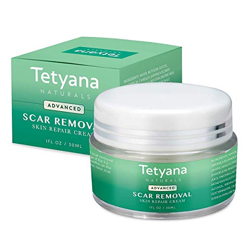 Tetyana naturals Scar Removal Cream Advanced Treatment for Old New Scars from Cuts Stretch Marks C-Sections Surgeries With Natural Herbal Extracts Formula hypoallergenic