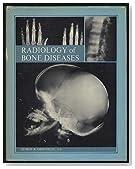 Radiology of Bone Diseases
