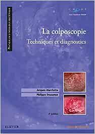 La colposcopie: Techniques et diagnostics (Pratique en gynécologie-obstétrique)