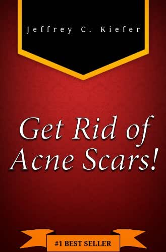 How to Get Rid of Acne Scars FAST: Discover the Best Acne Scars Treatment and Find Out How to Remove Acne Scars Easily & Efficiently.