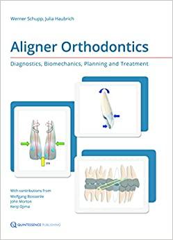 Aligner Orthodontics: Diagnostics, Biomechanics, Planning and Treatment