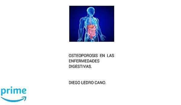 Osteoporosis en las enfermedades digestivas. (Spanish Edition): Dr Diego Ledro-Cano: 9781502312006: Amazon.com: Books