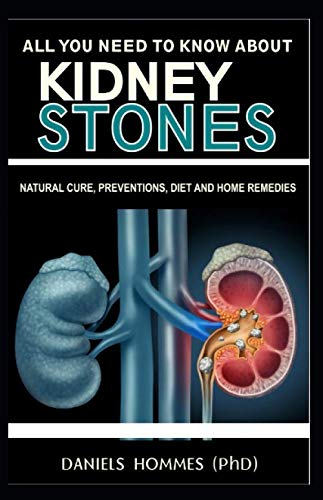 ALL YOU NEED TO KNOW ABOUT KIDNEY STONES: An Easy Guide to Kidney Stone Treatment, Prevention and Cure