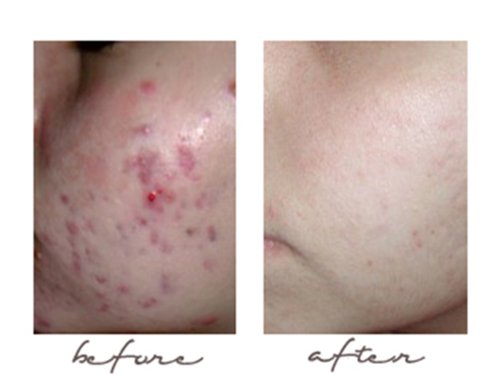how to use green tea extract for acne