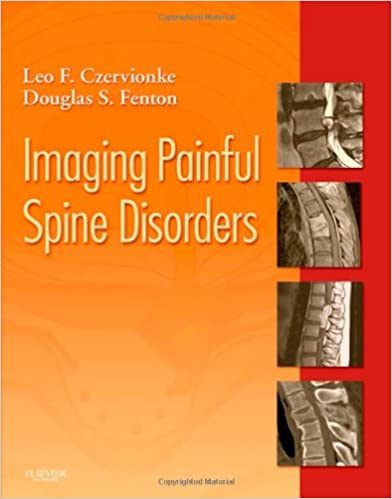 Imaging Painful Spine Disorders, 1e